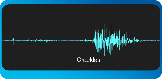 crackles in pulmonary edema