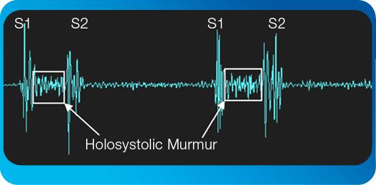 pulmonary-associated-heart-sounds-tricuspid-regurgitation
