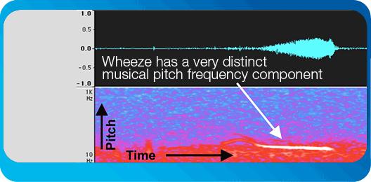 wheeze-asthma