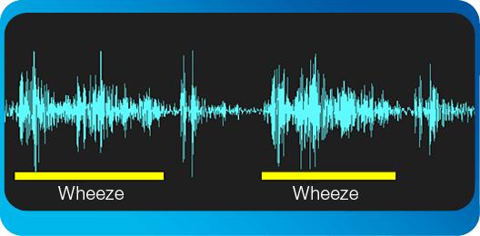 wheeze-bronchiolitis-7-month-old